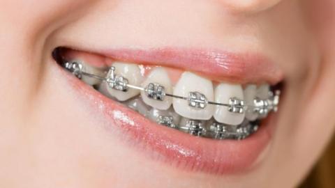 Benefits of having braces